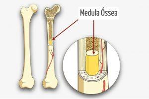 Doação de medula_ medula ossea